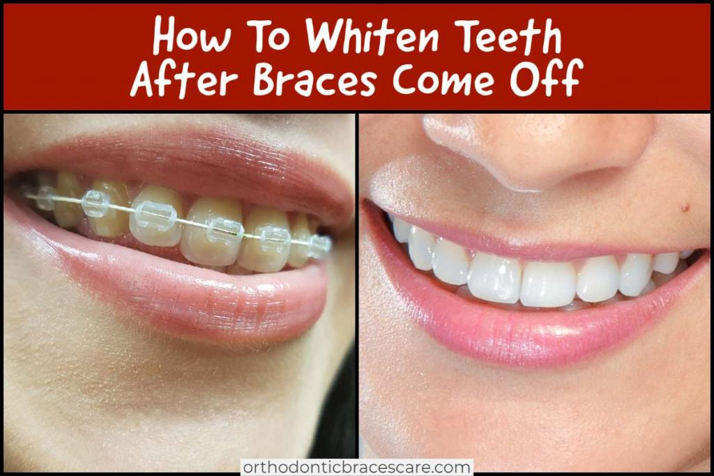 Ways To Whiten Teeth After Braces Come Off