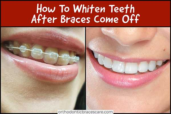How To Whiten Teeth After Braces Come Off