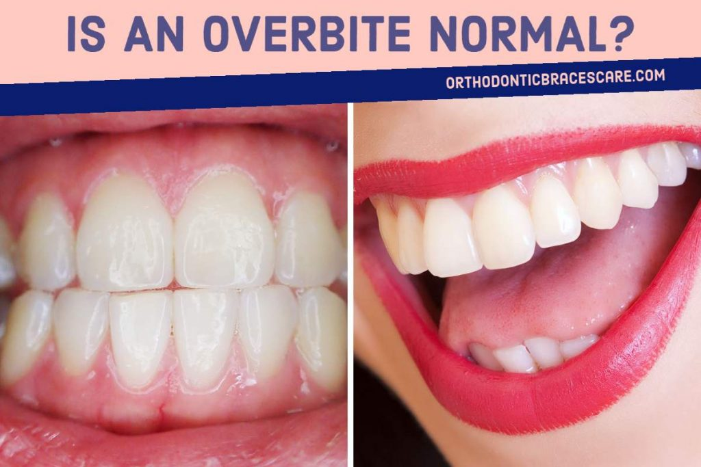 Is An Overbite Normal, Ways To Diagnose