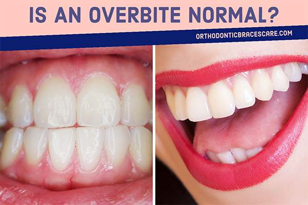 Is An Overbite Normal, How To Diagnose It