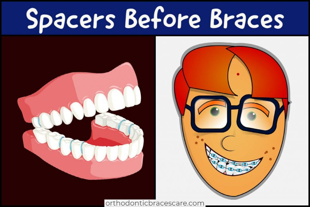 Need To Spacers before braces