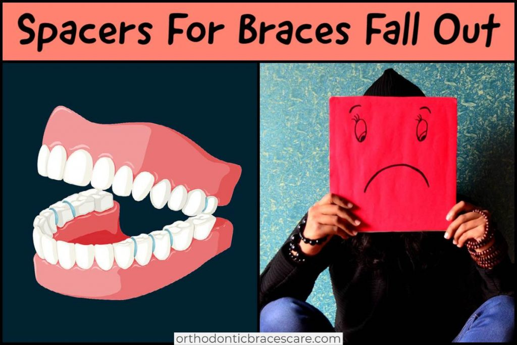 What happens if spacers for braces fall out, how to fix it
