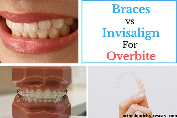 Braces vs Invisalign For Fixing An Overbite