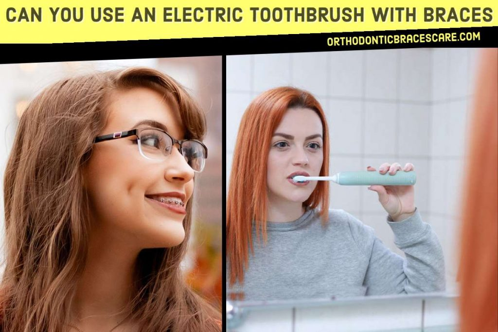 An Electric Toothbrush and Braces