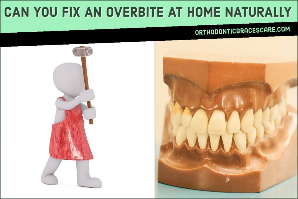 Fixing An Overbite At Home Naturally