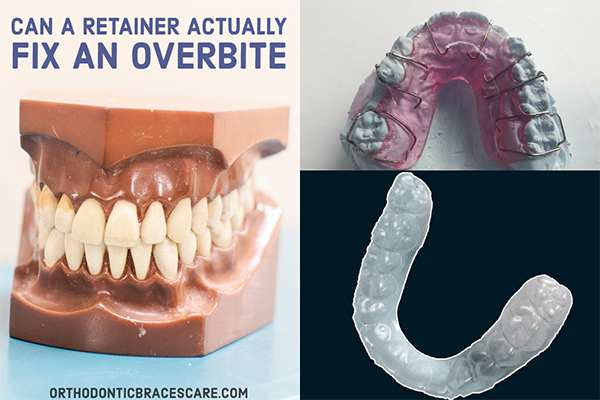 Can A Retainer Actually Fix An Overbite