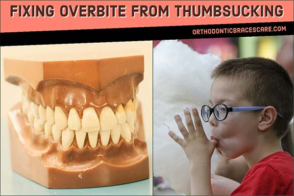How To Fix Overbite From Thumbsucking
