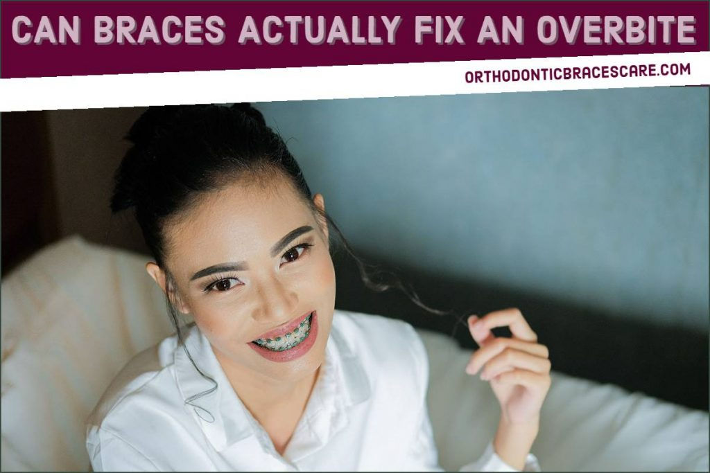 Can Braces Actually Fix An Overbite