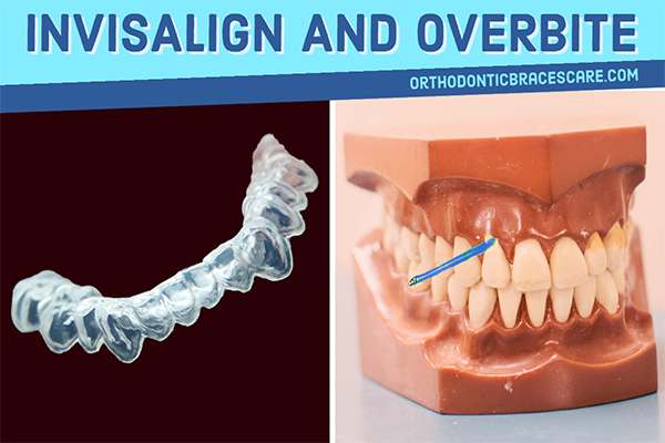 Can Invisalign Really Fix An Overbite