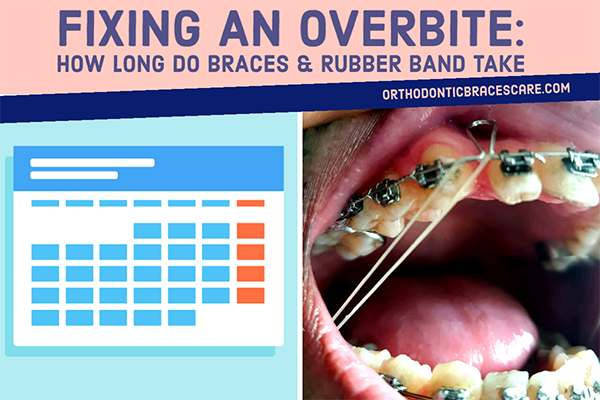 How Long Do Braces And Rubber Band Take To Fix Overbite