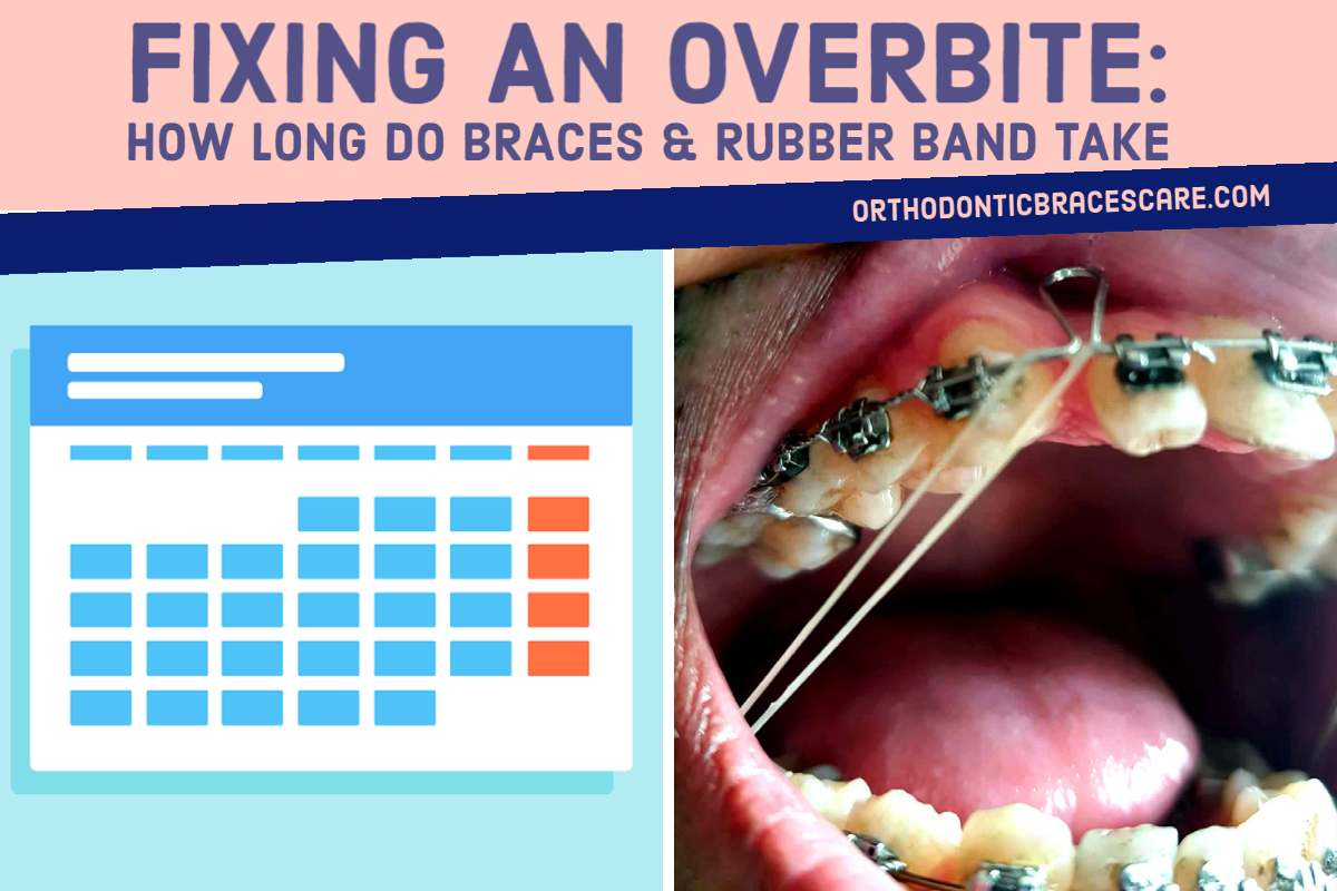How Long Do Braces And Rubber Band Take To Fix Overbite ...