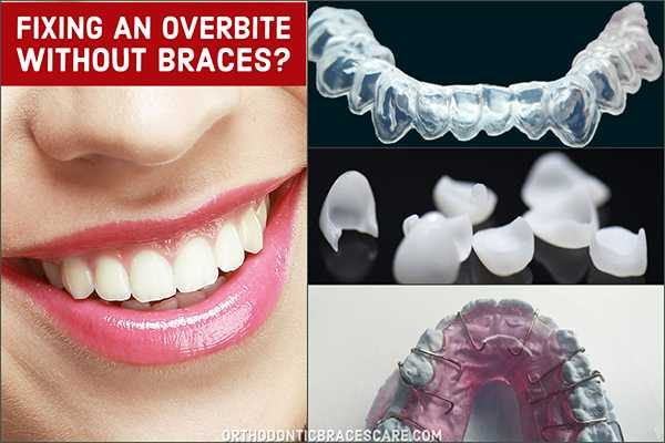 Fixing An Overbite Without Braces
