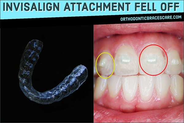 Invisalign Attachment Fell Off: Causes, How To Fix