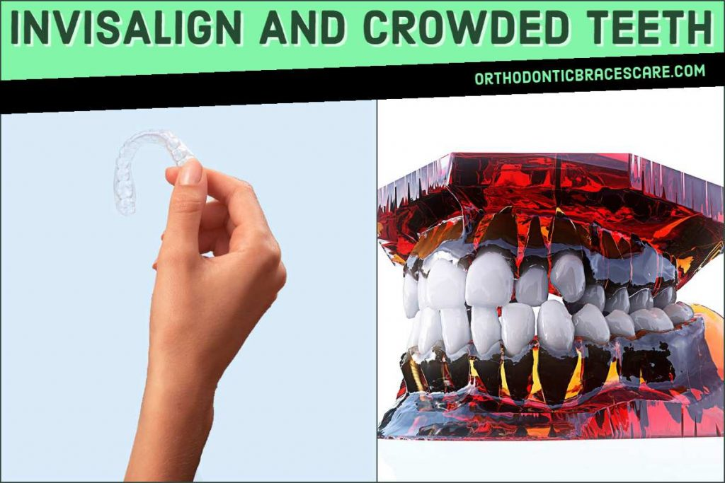 Invisalign For Crowded Teeth