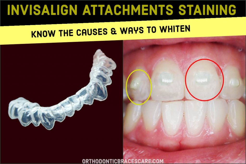 Invisalign Attachments Staining Removal and Whitening