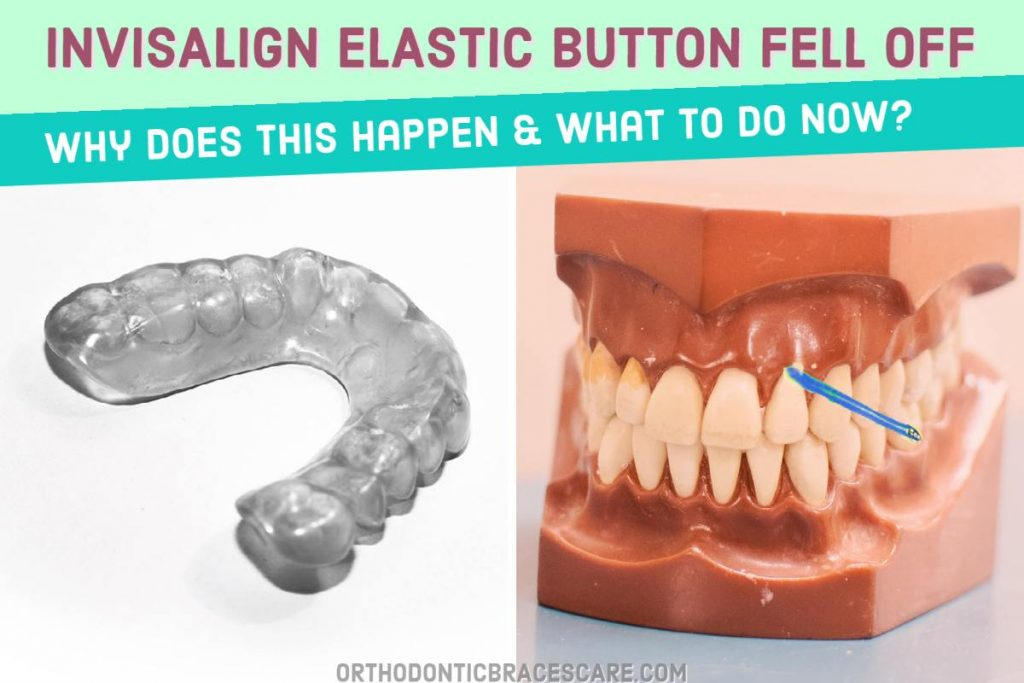 Invisalign elastic buttons fell off: Causes and ways to fix