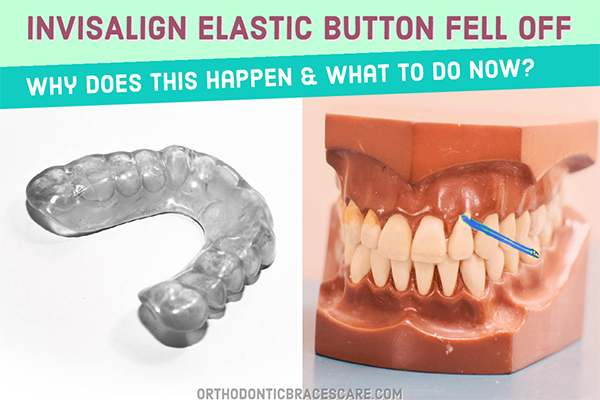 Invisalign elastic buttons fell off: Causes and how to fix