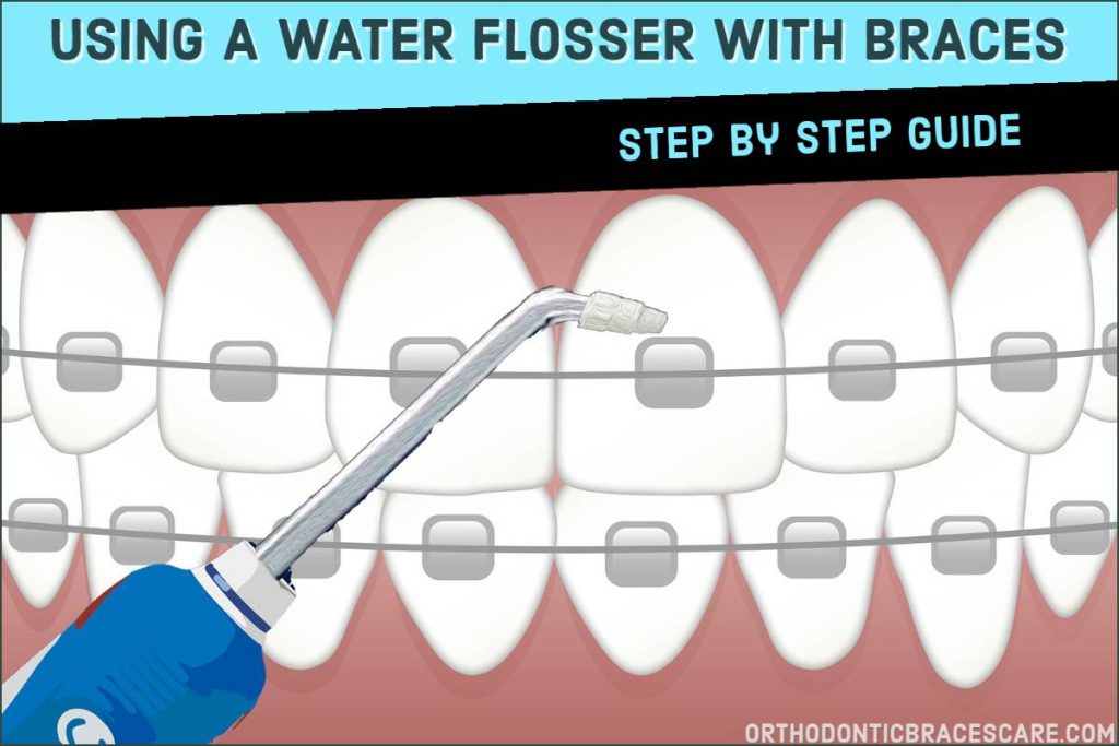 How To Use A Water Flosser With Braces: Step by Step guide
