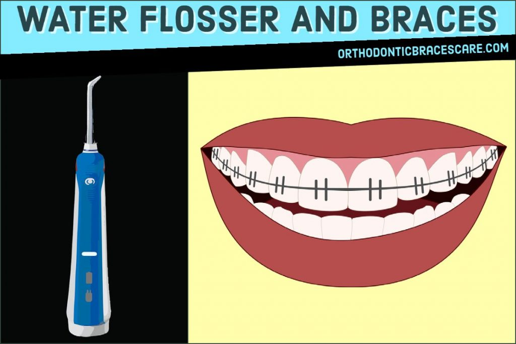 Waterpik Flosser Safe And Effective For Braces