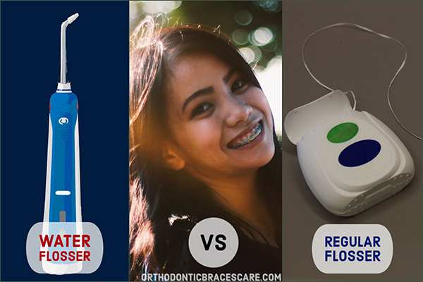 Can A Waterpik Replace Flossing With Braces