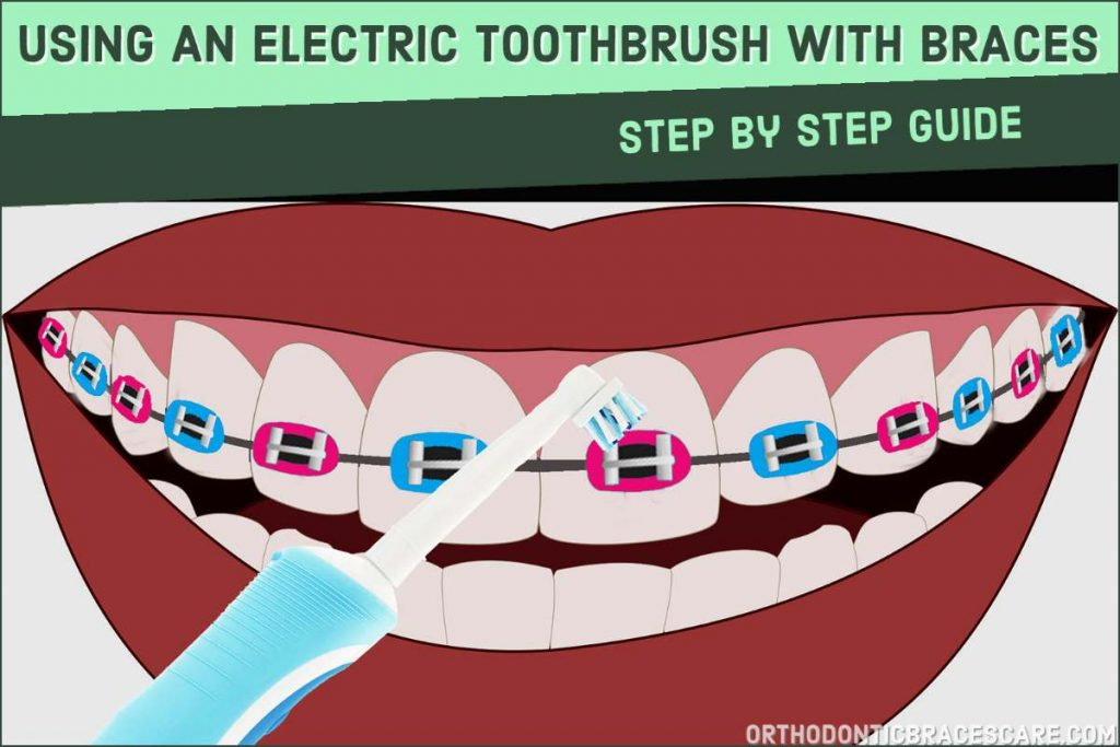 How to use electric toothbrush with braces: step by step guide