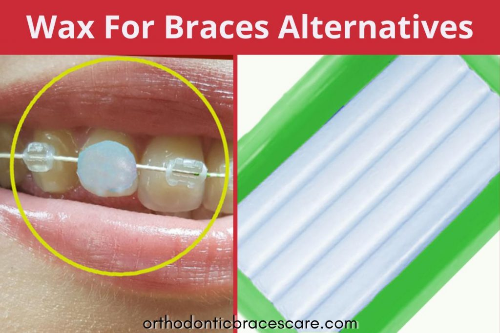 Wax for braces alternatives