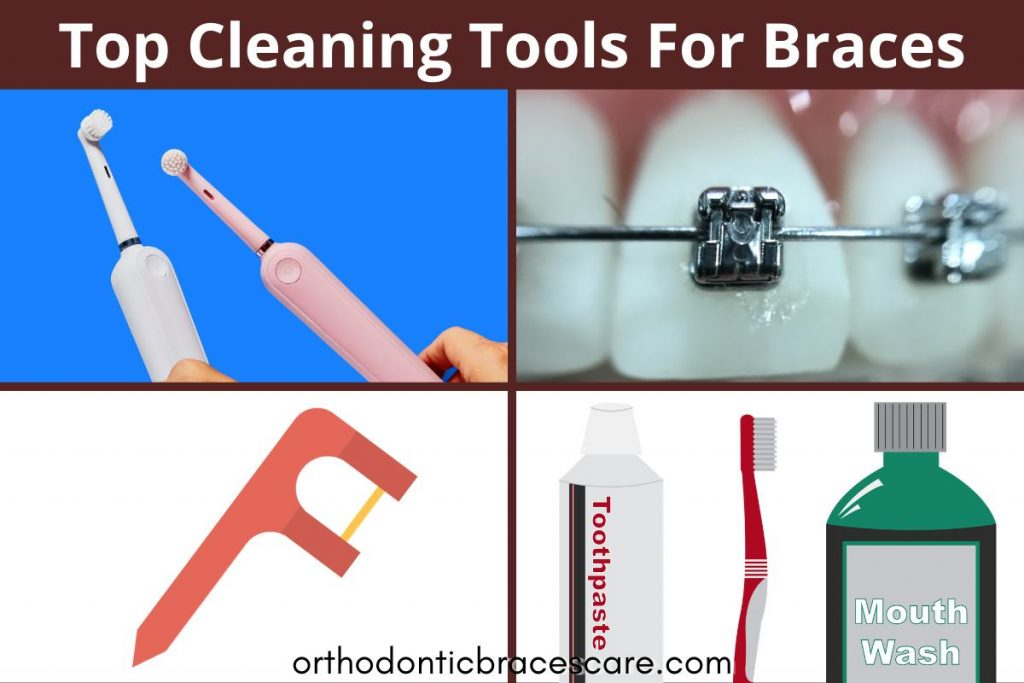 Best Cleaning tools for braces