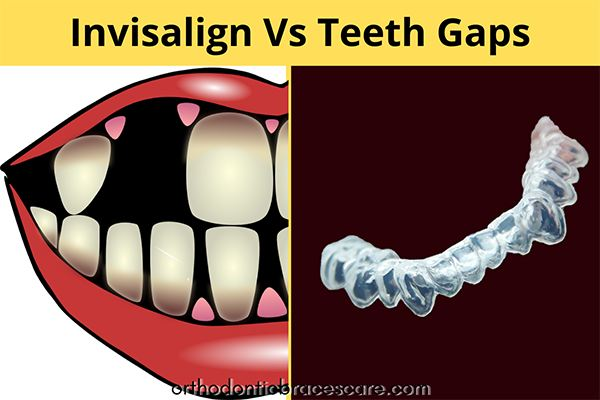 Invisalign for missing teeth gaps