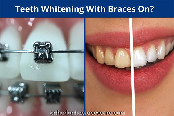 Teeth whitening with braces on teeth